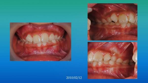 ワイヤーによる矯正前の口腔内写真