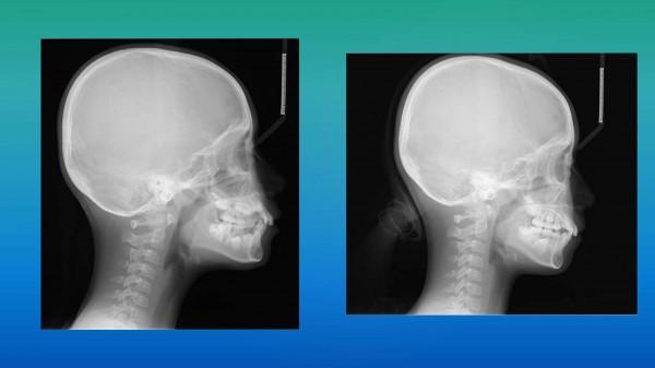 ワイヤーによる矯正前と矯正後のレントゲン症例