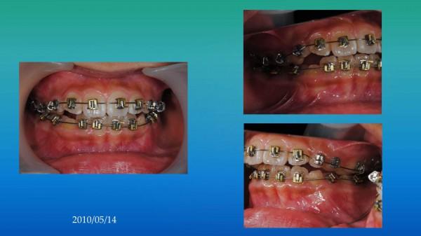 ワイヤーによる矯正の口腔内写真